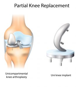 Partial Knee Replacement illustration
